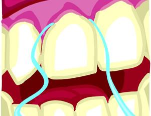 flossing and gum disease