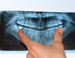 doctor shows a teeth in a x-ray picture