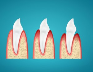 Stages progress disease gum on human canine on blue background